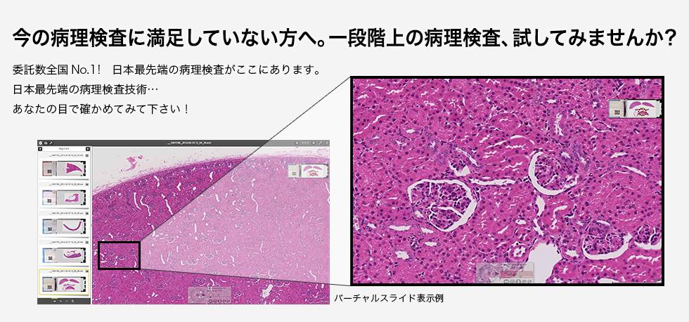今の病理検査に満足していない方へ 一段階上の病理検査、試してみませんか? -委託数全国No.1!日本最先端の病理検査がここにあります。日本最先端の病理検査技術…あなたの目で確かめてみて下さい!-